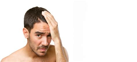 Hair Loss - Causes & Treatment Options | Radiance Skincare
