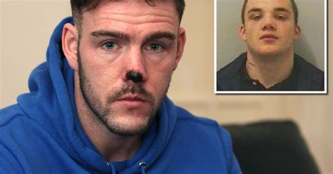 North Tyneside man who bit off young dad's nose is jailed