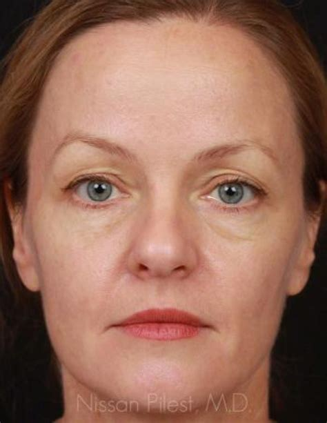 Case 28976   Injectables Before & After Gallery   Total