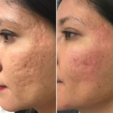 Scars Education   Skin Perfect Brothers Medical Spa Walnut