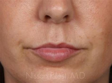 Case 28991   Injectables Before & After Gallery   Total