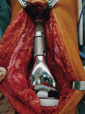 Megaprostheses for Reconstruction Following Tumor
